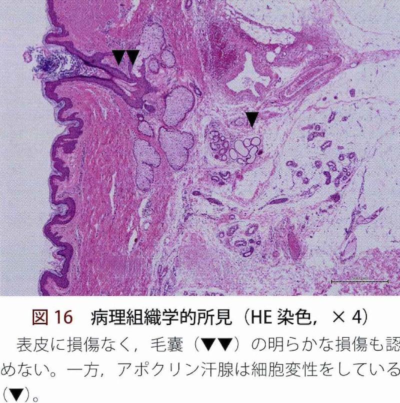 形成外科 2016年増刊号、  (6)フラクショナルRF(ビューホット)より引用